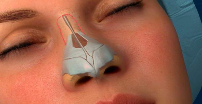 устранение горбинки носа