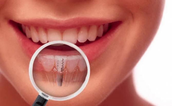 зубная имплантация во Львове